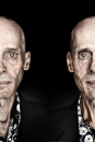 Portretten Ton Stevens voor en na Lipoartofie behandeling